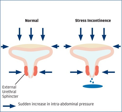 a nurse is providing teaching to an older adult female client who has stress incontinence-0