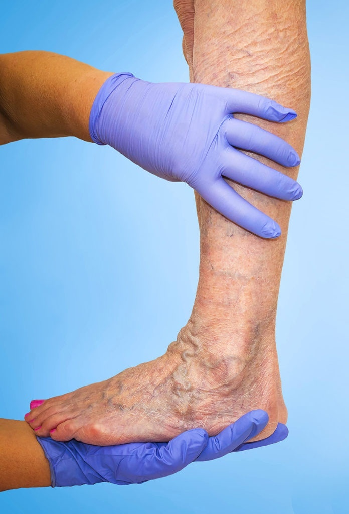 a physician who studies and treats diseases of the veins is called a-0
