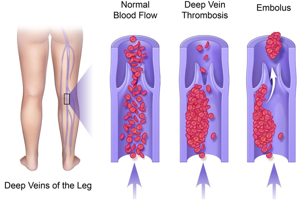 a physician who studies and treats diseases of the veins is called a-1