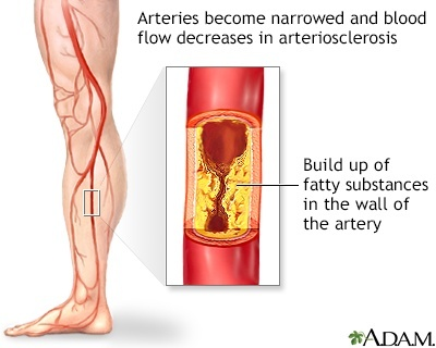 a physician who studies and treats diseases of the veins is called a-3